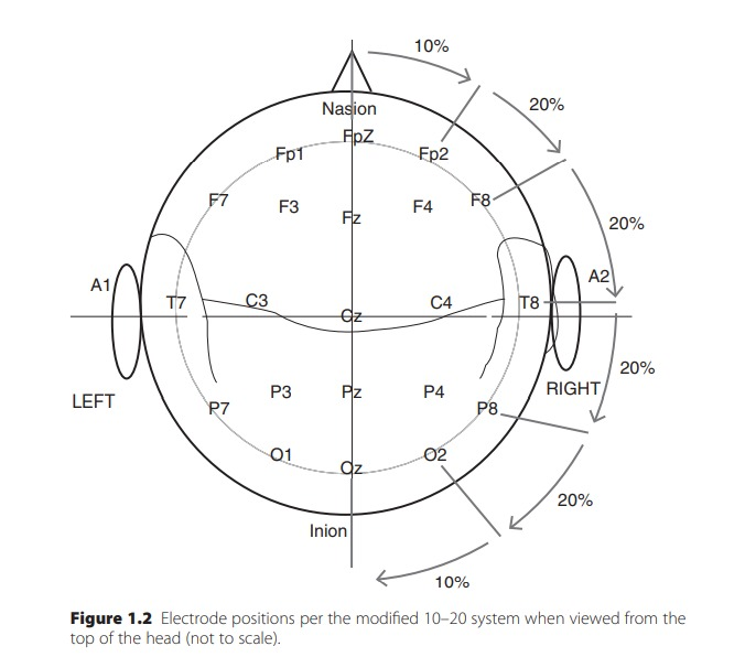 Electrode positions per the modified